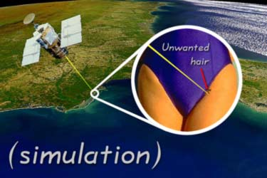 satellite laser hair removal